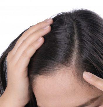 Micro-pigmentation-on-scalp